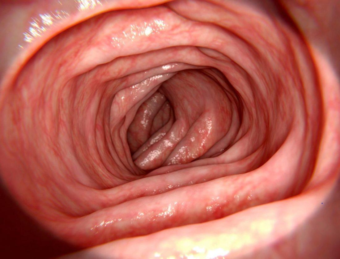 nowotwor przewodu pokarmowego